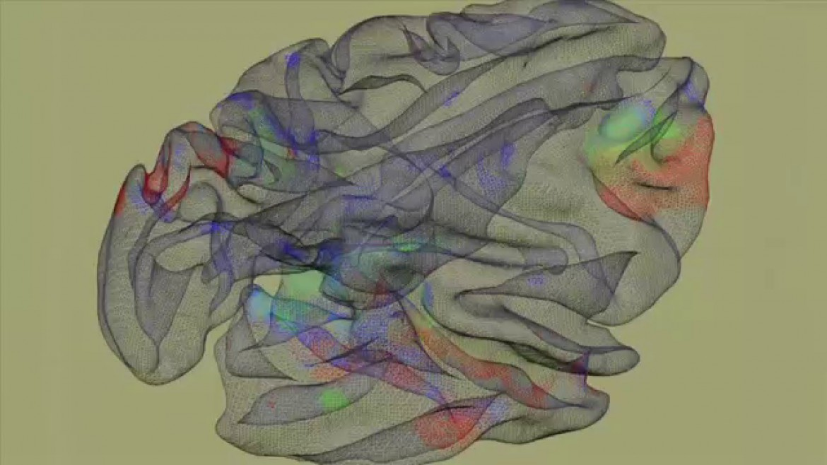 Exhibition offers insights into the brain